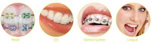 1_ortodontija_fiksni-aparati