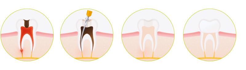 endodontija1