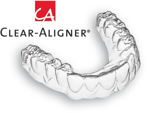 clear-aligner-1