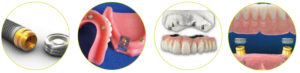 implantati-locator