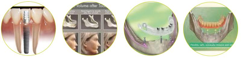 implantati-mini
