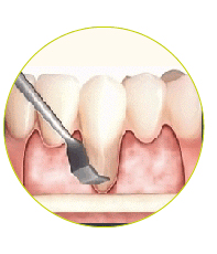 estetska-kirurgija-dlesni-1-01