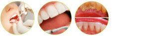 ultrazvocna-odstranitev-zobnega-kamna