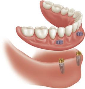 implantatno-podprte-zobne-proteze1