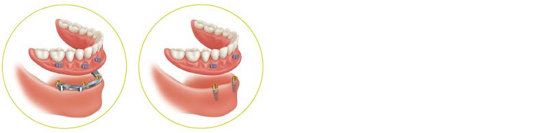 proteze_implantatno-podprte-proteze