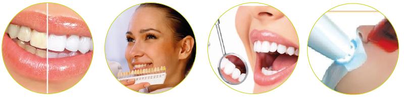 beljenje-zob2