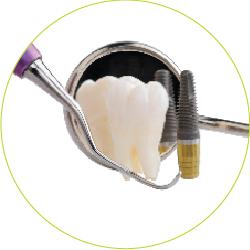 endodontija-01_zdraviti-ali-implantat