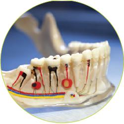 endodontija-04_kako-poteka-zdravljenje