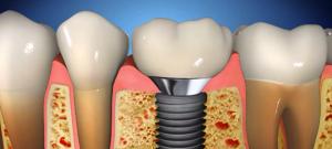 1osnovna_implantati