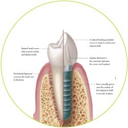 1_implantat