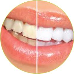estetsko-05-beljenje-zob