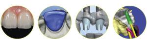 implantati-v-enem-dnevu