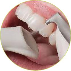 bolezni_dlesni_konzervativno-zdravljenje_gingivitisa_2