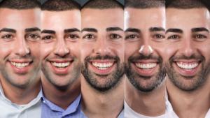 smile-desing-primer