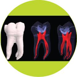 endodontija-05_kako-poteka